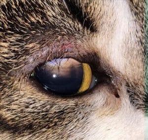 Ophthalmology case study